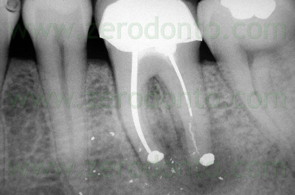 apicoectomy molar