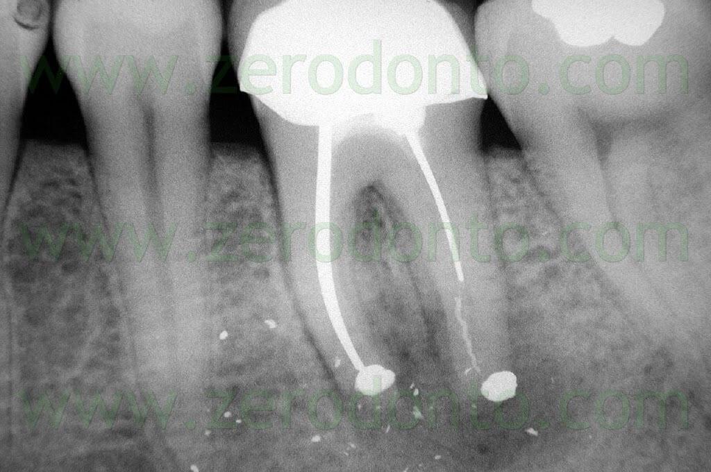 apicoectomy molar