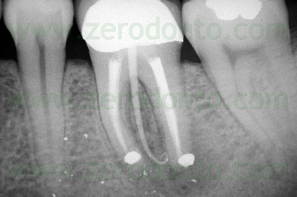 root canal shaping