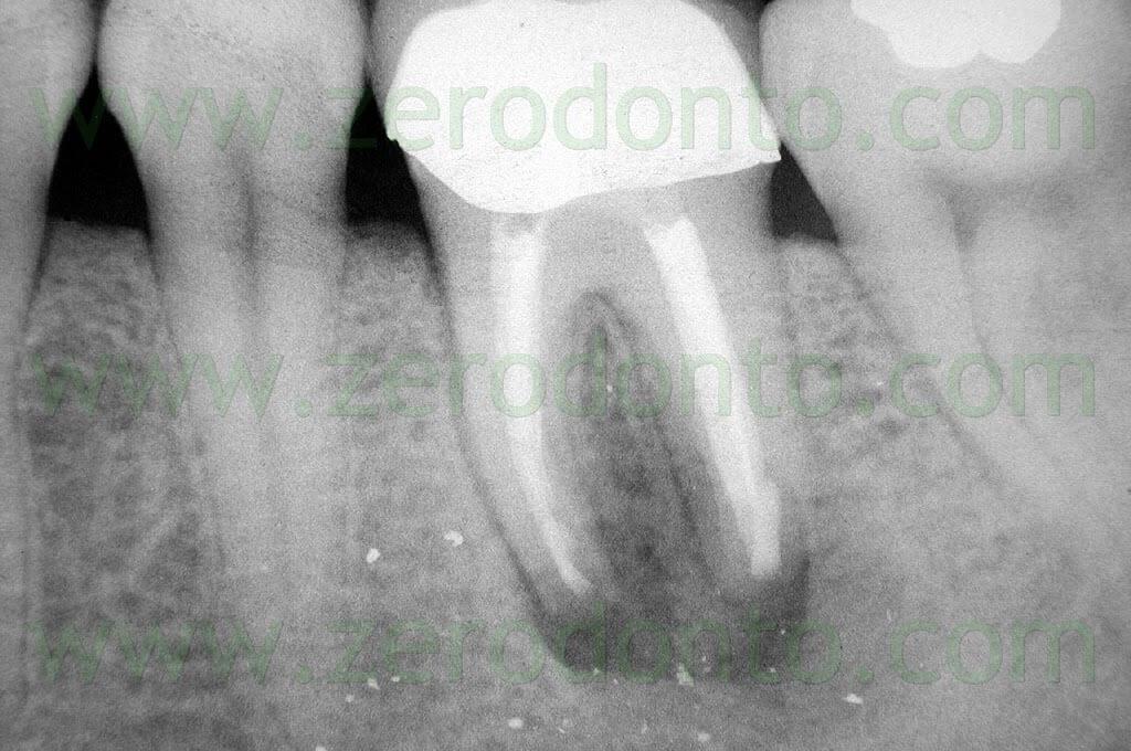 apical periodontitis