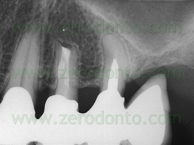 endodontics mta
