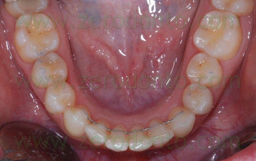 post-invisible therapy lower occlusal view