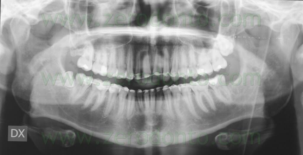 final orthopantomography