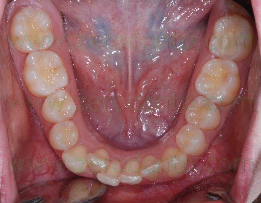 pre-treatment lower occlusal view