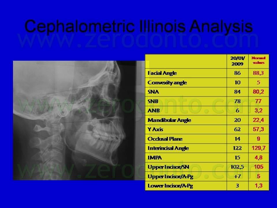 cephalometric analisys