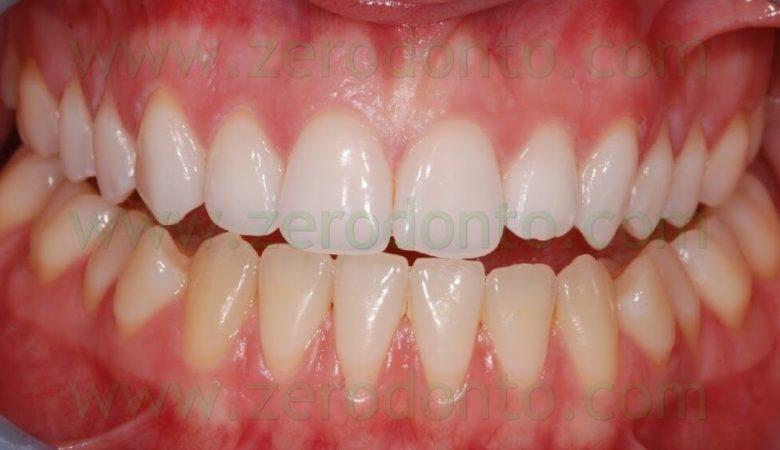 Dental Bleaching   Dr  Natascia Raciti, Dr  Fabio Cozzolino