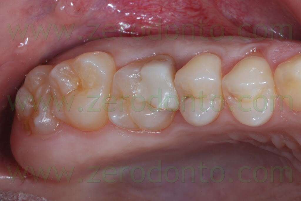 Direct And Indirect Adhesive Composite Restorations Of Posterior Regions