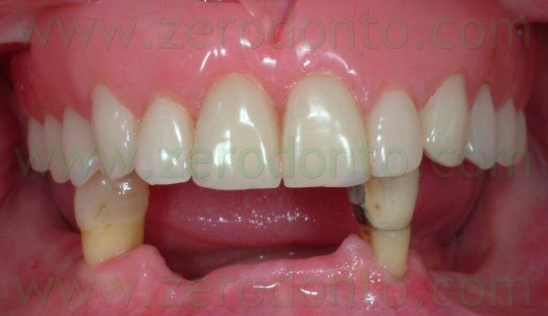 Full-arch restoration with Straumann implants and zirconia