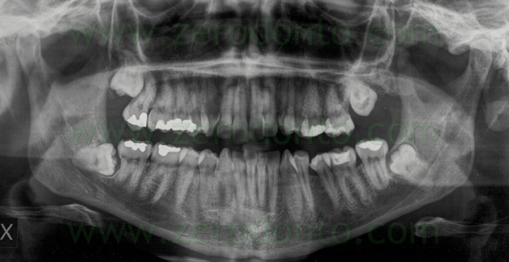 1 panoramic x-ray impacted wisdom tooth