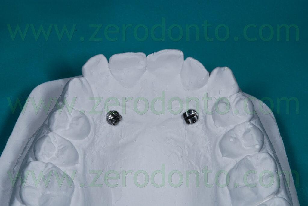 mini-screws in the model cast
