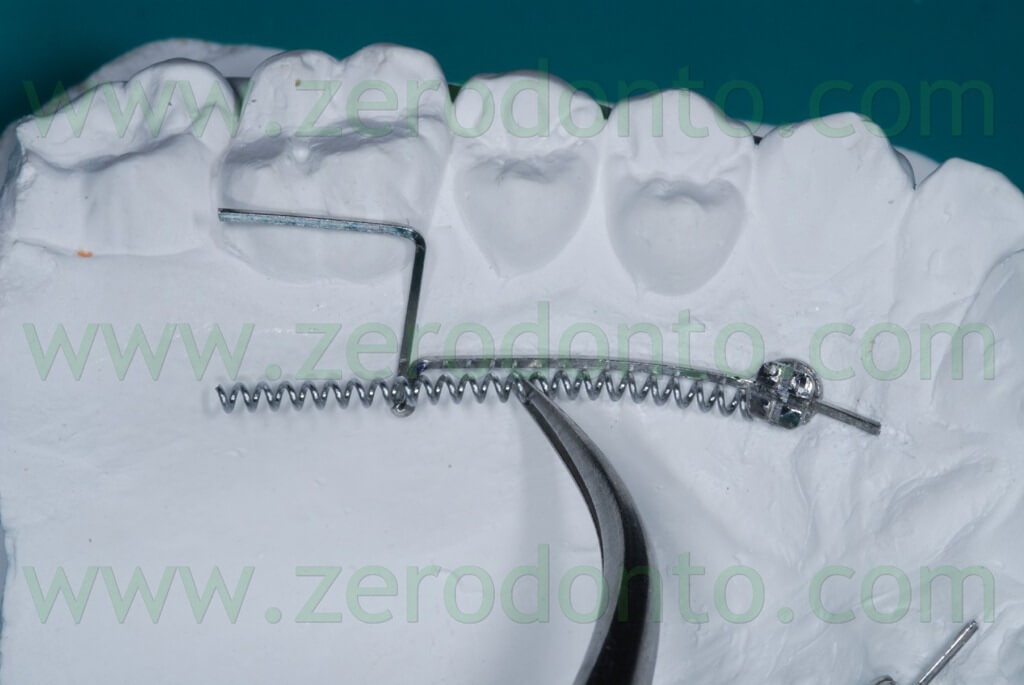 dental coil to distalize