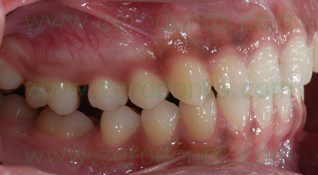 molars distalization