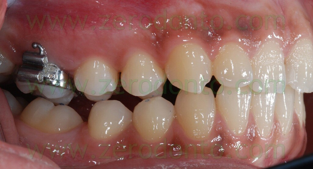 upper molars bands