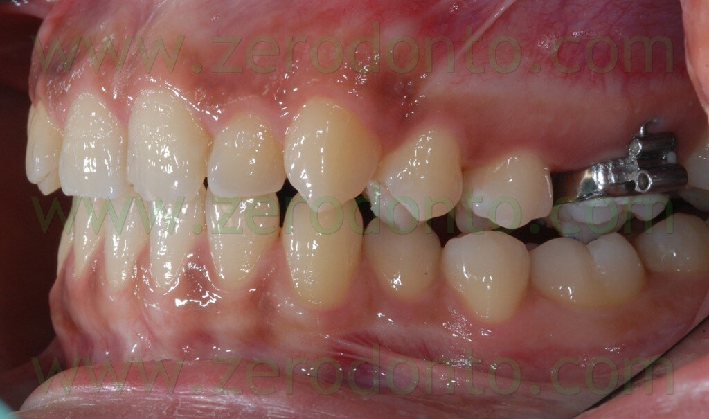 upper molars bands for anchorage