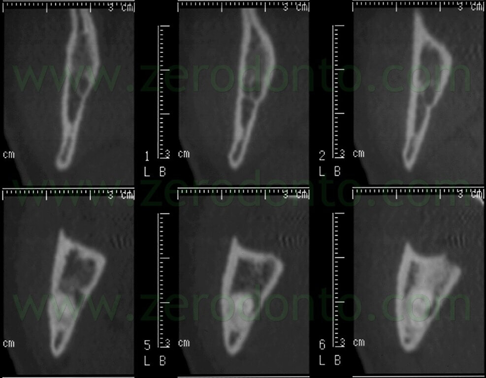 3 CT impacted wisdom tooth
