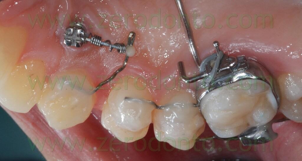 canine distalization lingual orthodontics