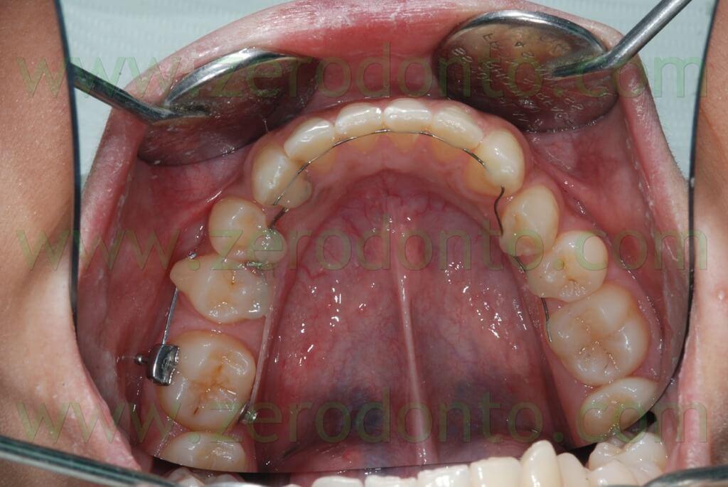 molar mesialization