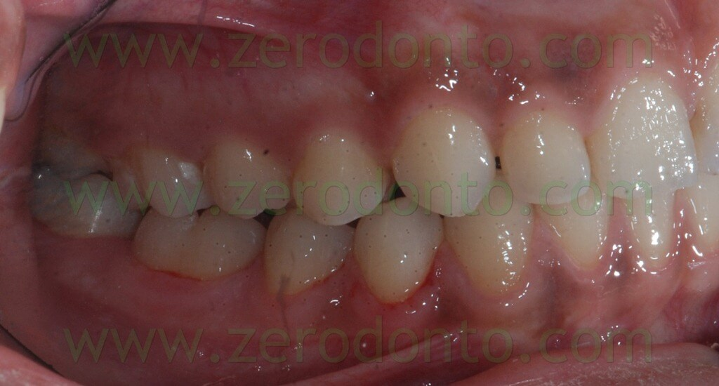 active retainers lingual orthodontics without brackets