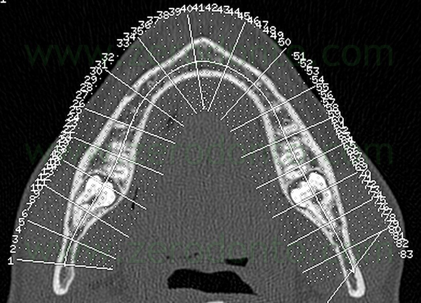 7 CT impacted mandibular third molar