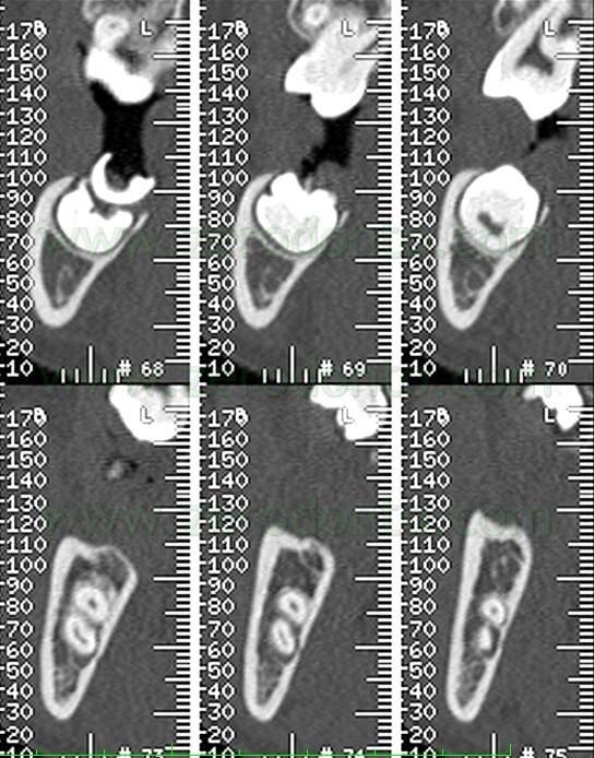 7b CT impacted mandibular wisdom tooth