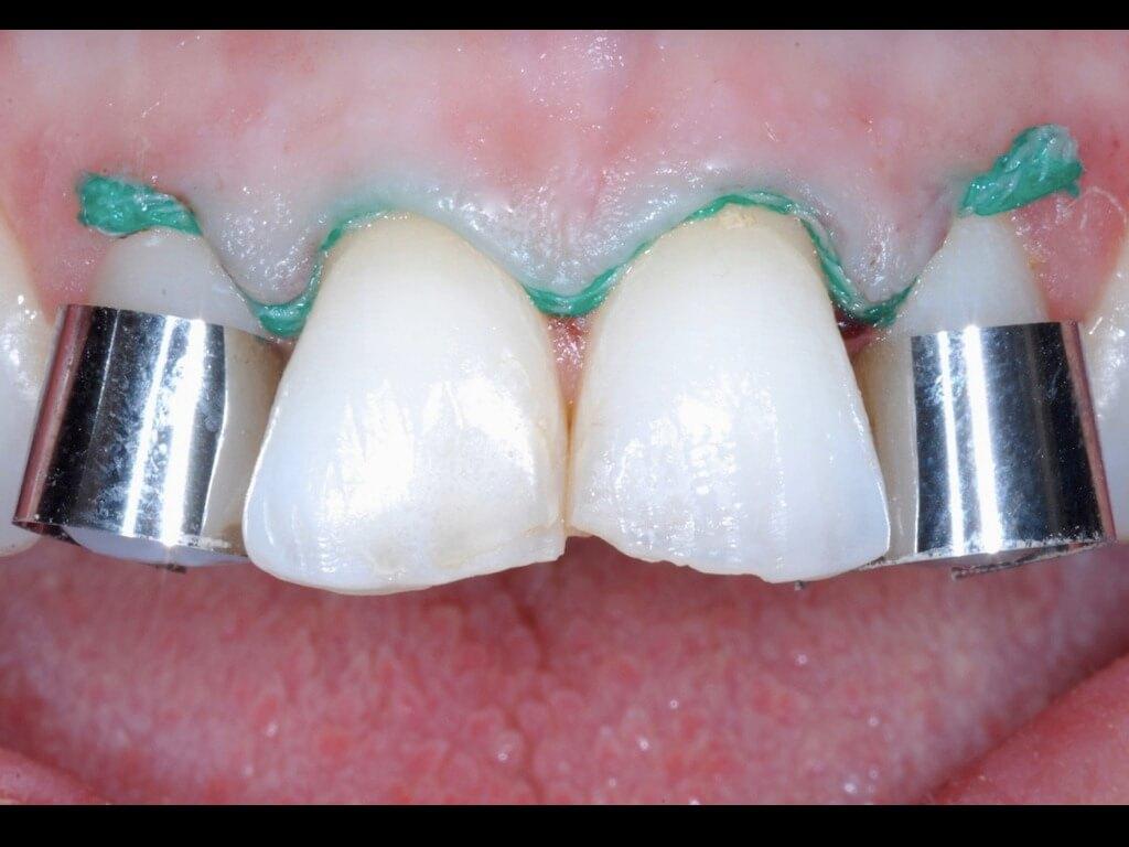54 matrici protezione preparazione denti
