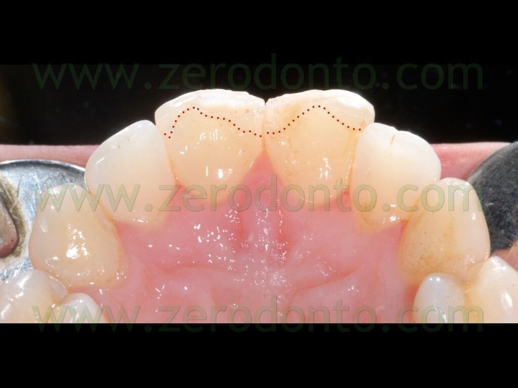7 frattura denti