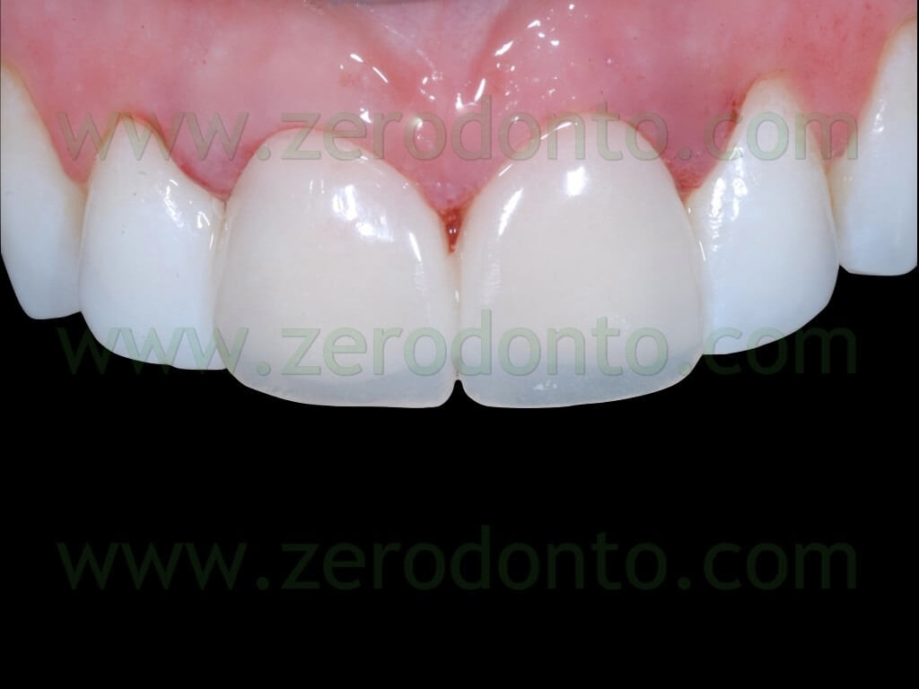 78 temporary veneers