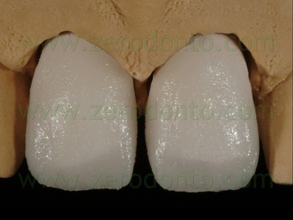 89 stratificazione ceramica massa smalto faccette