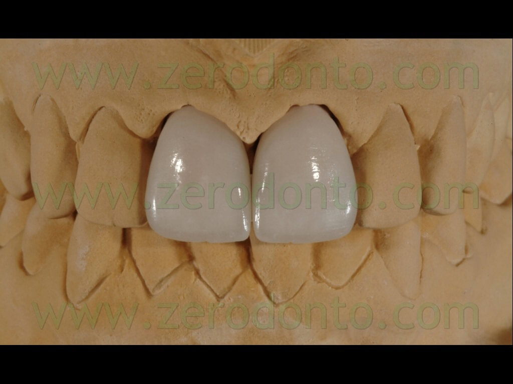 91 stratificazione ceramica glasura faccette