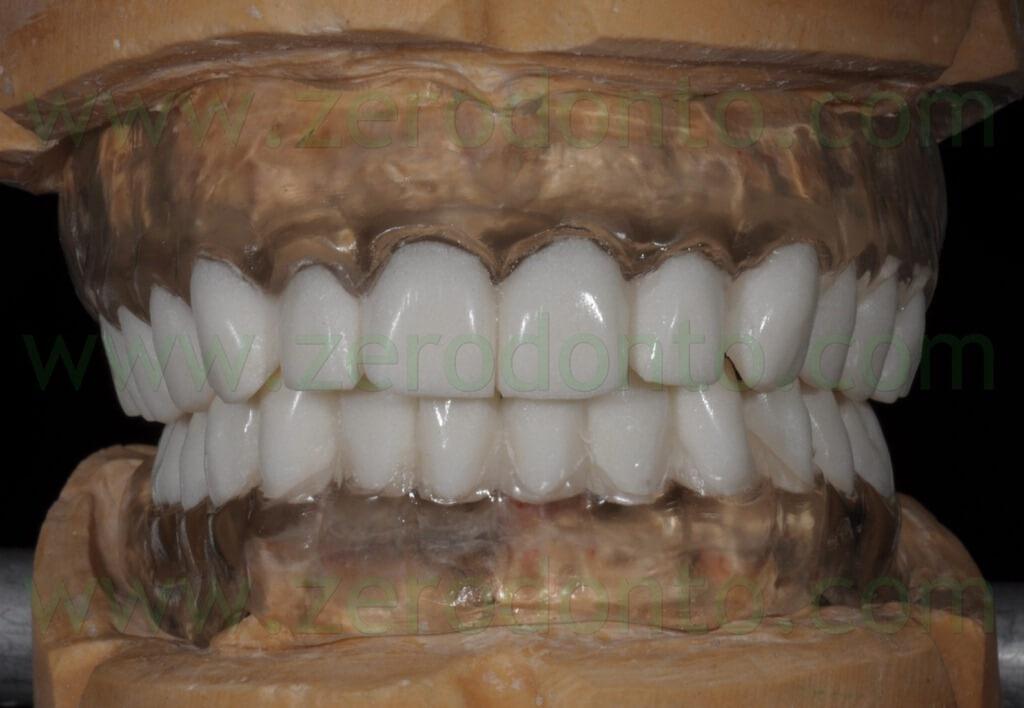 - (48) denti in bario