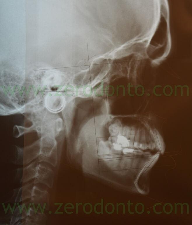 9 cefalometria