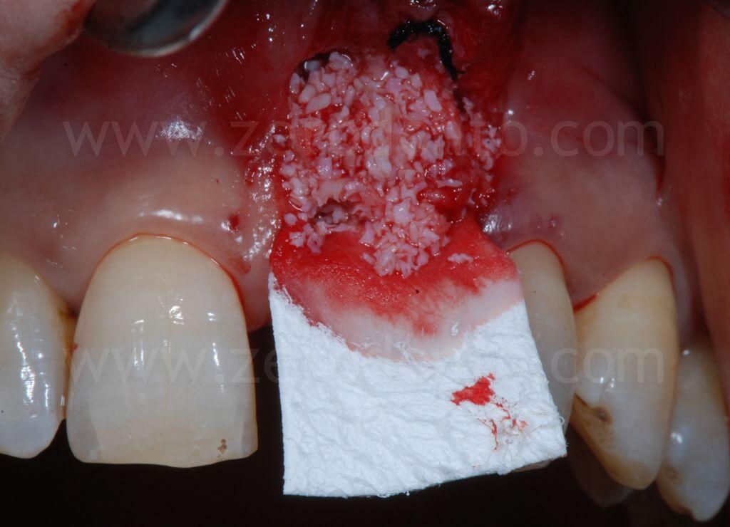rigenerazione ossea guidata