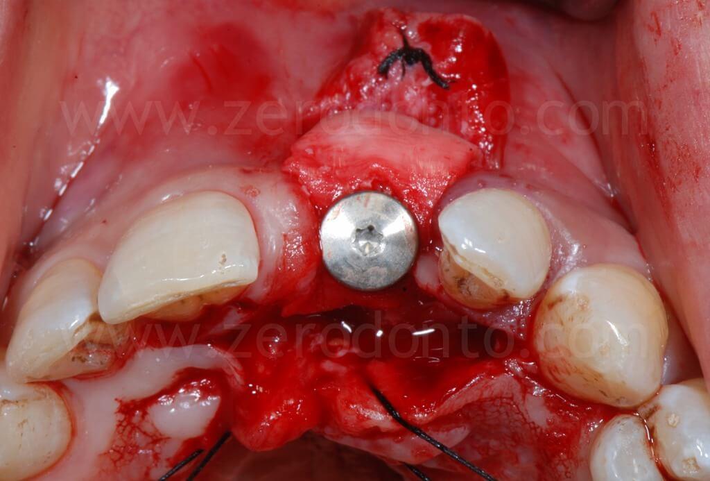 rigenerazione ossea gbr