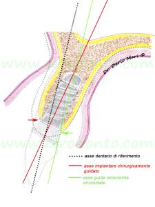impianti chirurgicamente guidati zona estetica split crest lateral alveolar bone augmentation rigenerazione ossea implantologia