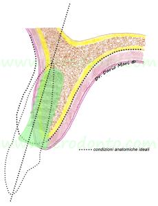 impianto protesicamente guidato illustrazione implantologia cresta riassorbita atrofica split crest espansione cresta edentula casi avanzati implantologia
