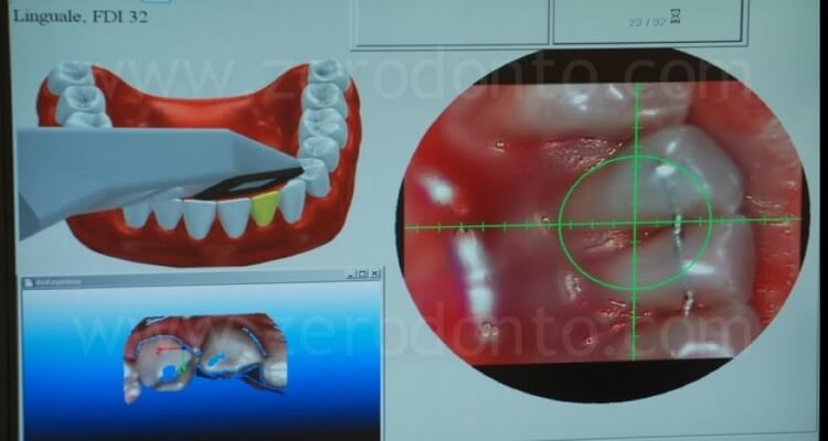 Digital impression by means of Itero intraoral scanning system to fabricate zirconia single crowns