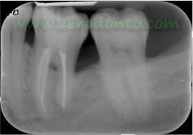"""Hopeless tooth"" treatment 10"