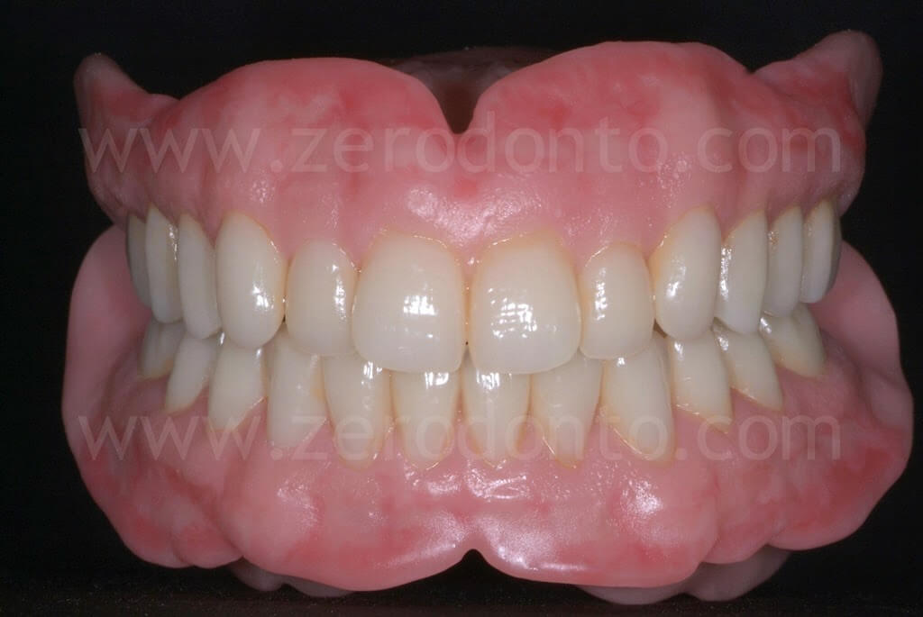 Esthetics in Total Removable Prosthodontics
