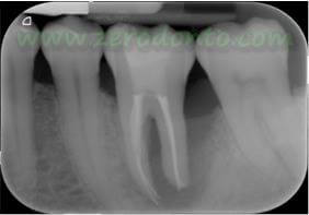 """Hopeless tooth"" treatment 5"