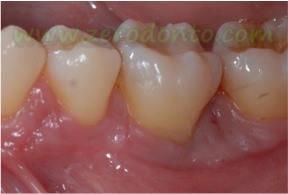 """Hopeless tooth"" treatment 8"