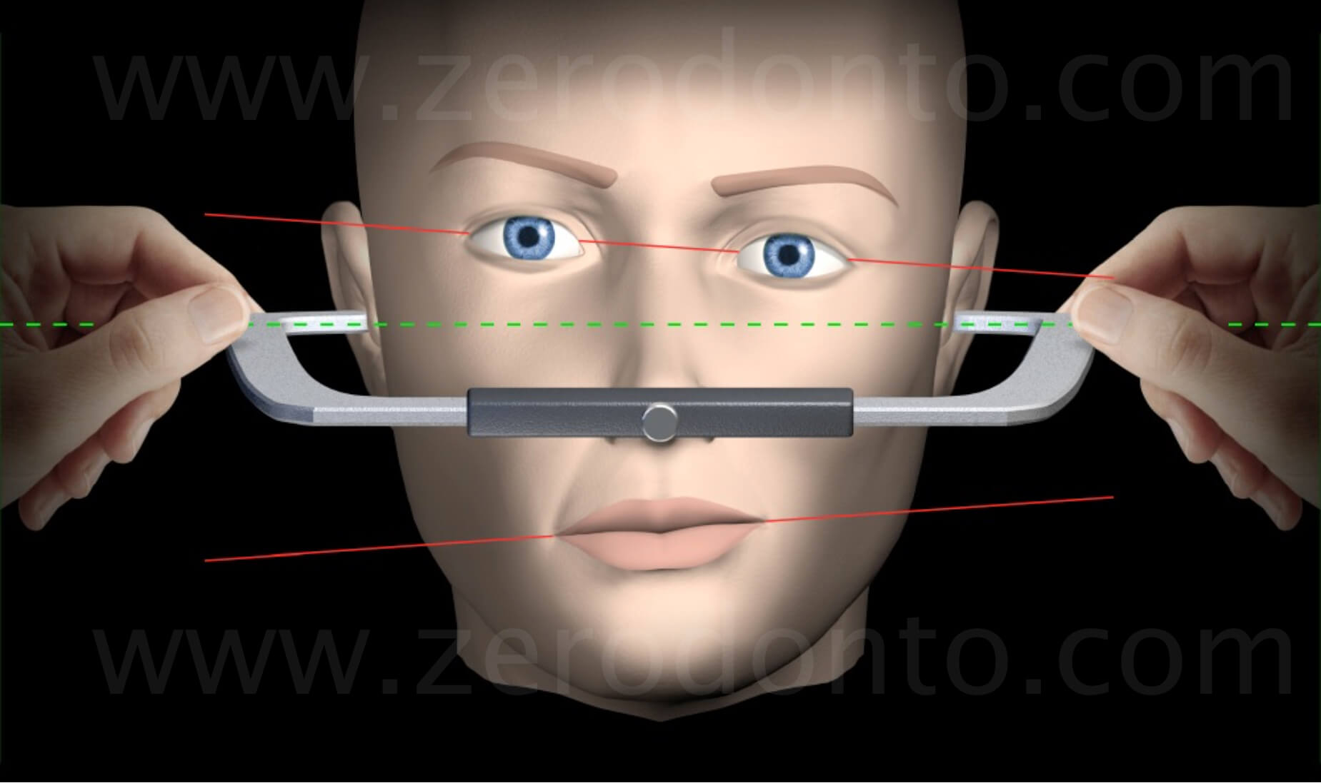 reference linesfacial analysis