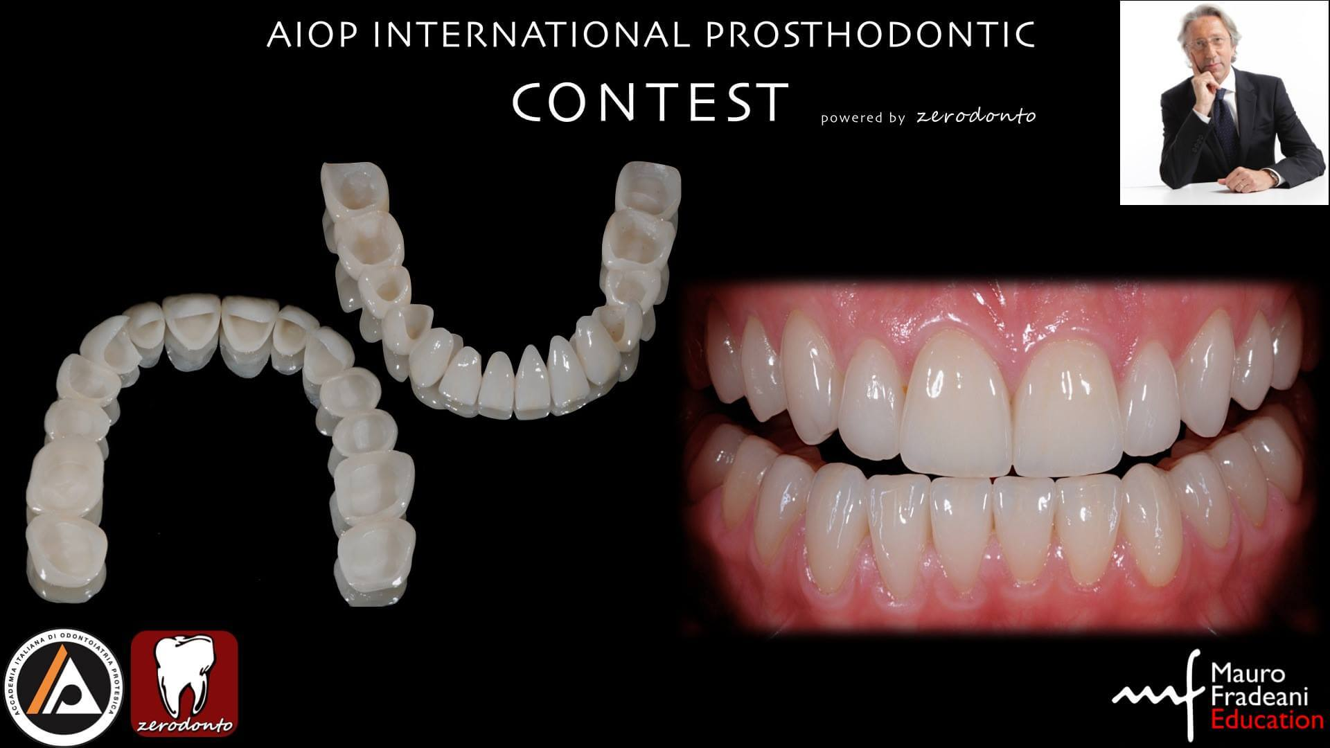 Esthetic Rehabilitation of a Severely Worn Dentition with Minimally Invasive Prosthetic Procedures (MIPP)  <img class=