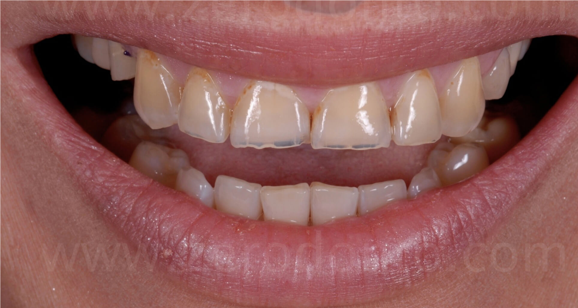 incisal line lenght