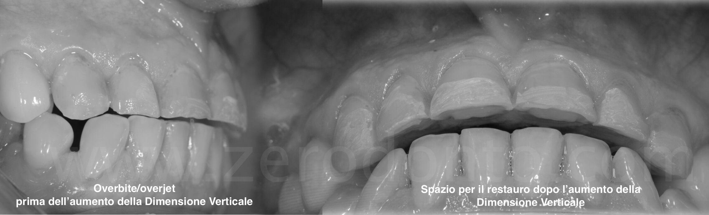 overbite overjet vertical dimension