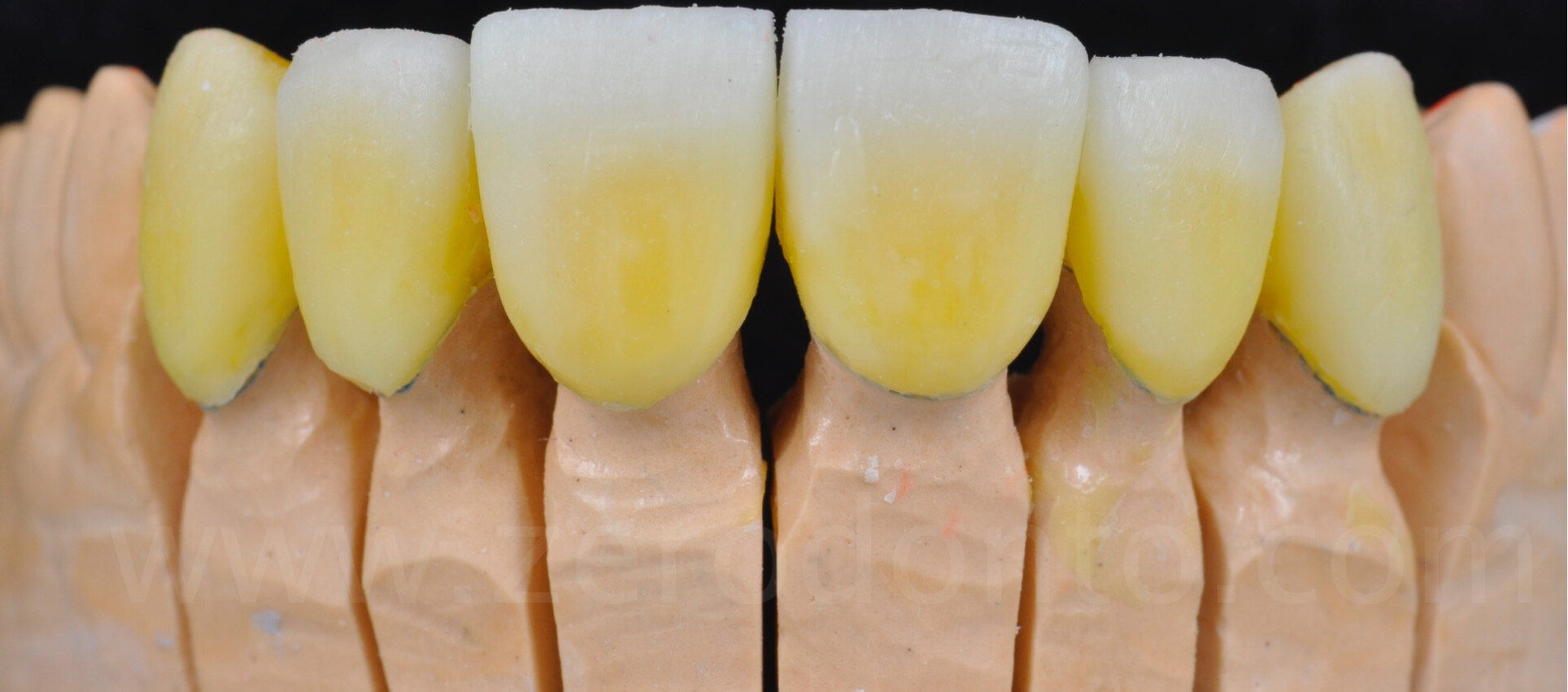 lithium disilicate anterior full-veneers