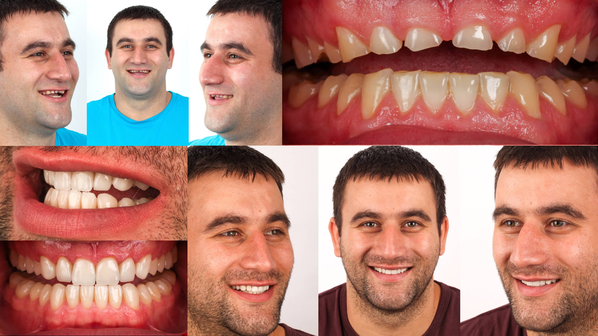 Prosthetic restoration in aesthetic Dentistry: winner case n°2 from Aiop International Prosthodontic Contest 2014