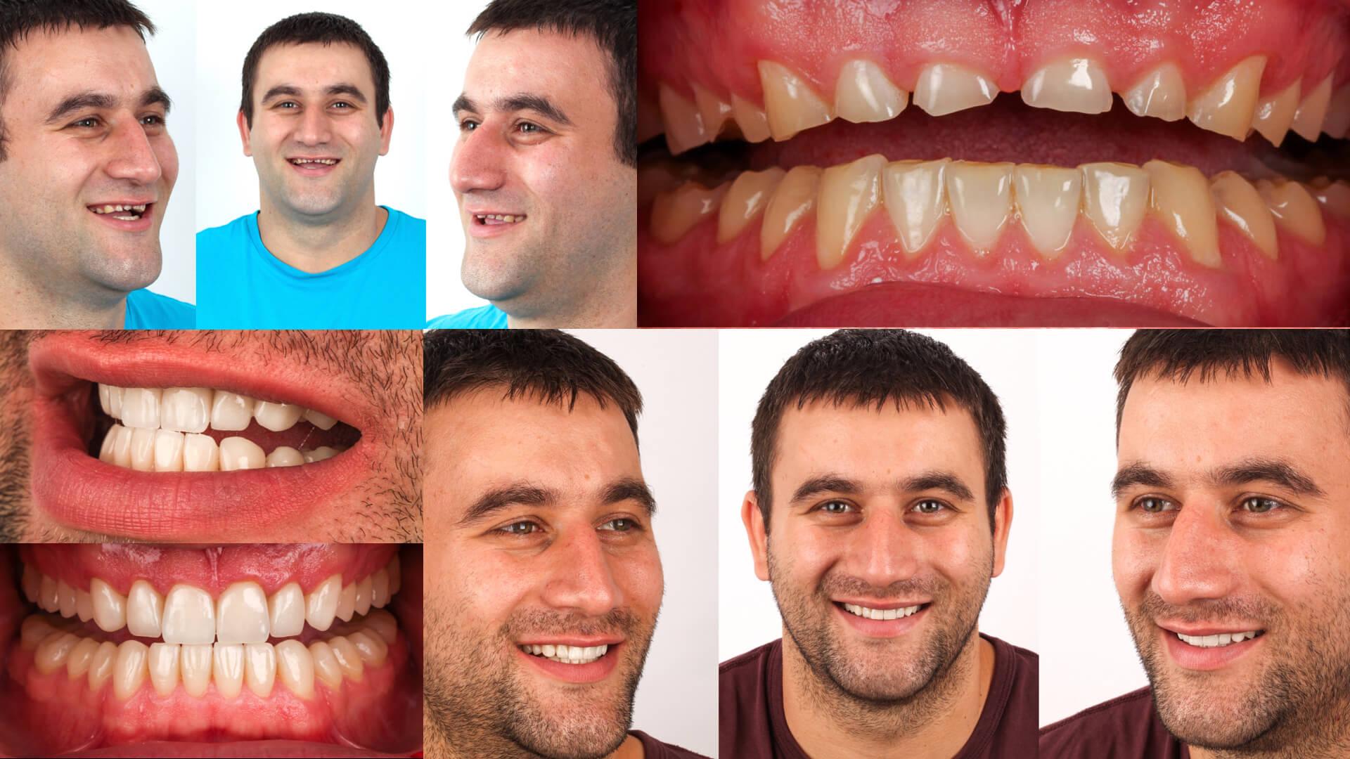 Prosthetic restoration in aesthetic Dentistry: winner case n°2 from Aiop International Prosthodontic Contest 2014