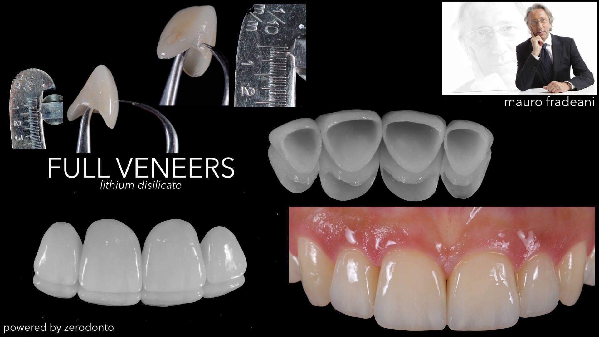 Full Veneers