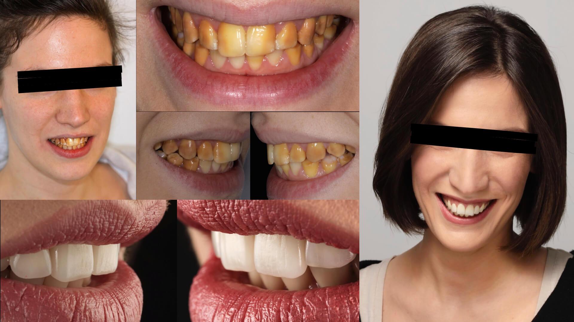 Prosthetic restoration in aesthetic Dentistry: winner case n°1 from Aiop International Prosthodontic Contest 2014