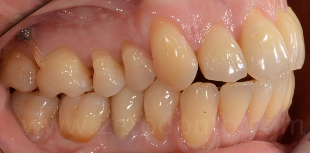21 visione laterale denti